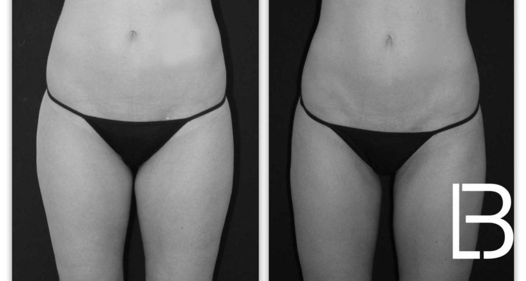 Chirurgia Estetica: liposuzione al primo posto in Italia