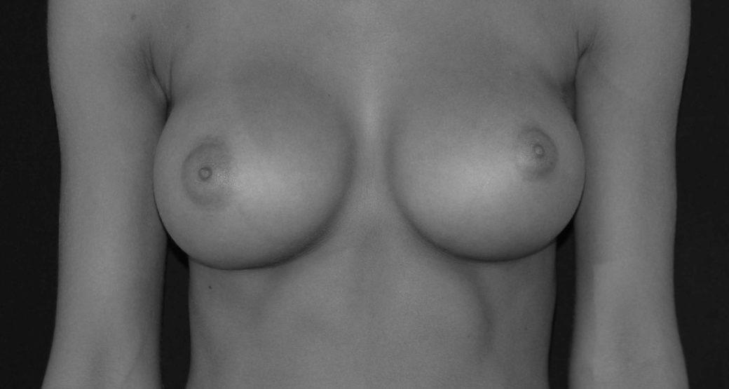 Il seno: no a dimensioni esagerate, si a proporzioni e armonia