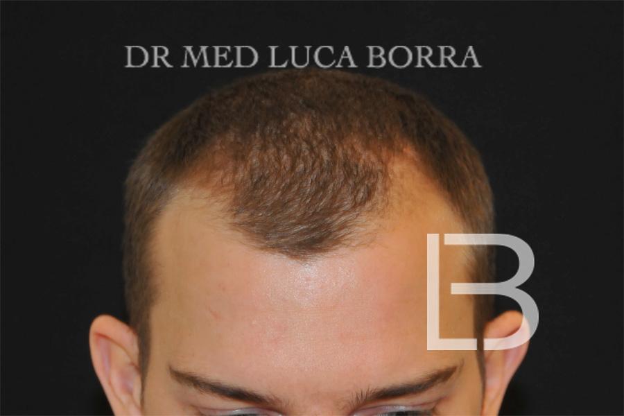 Foto preoperatoria trapianto capelli